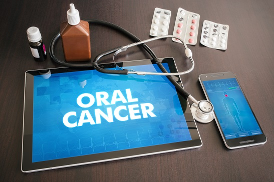 Oral Cancer Screening At London City Smiles