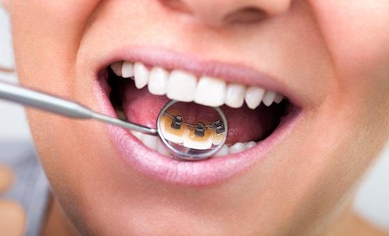 The Advantages of Lingual Braces